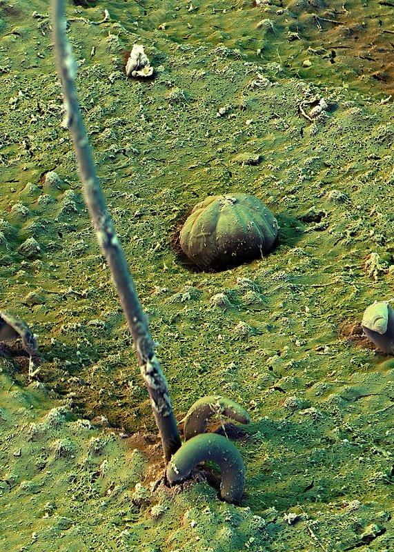 Macaranga leaf trichomes, SEM