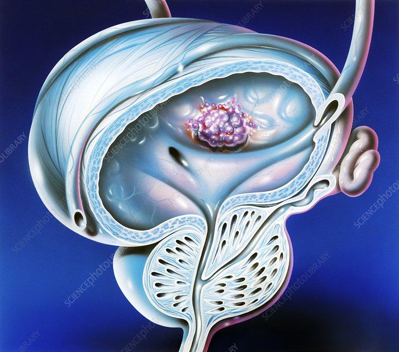 Bladder tumour, artwork