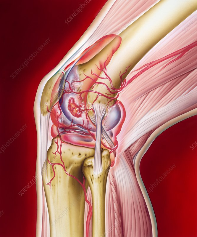 Knee in rheumatoid arthritis, artwork