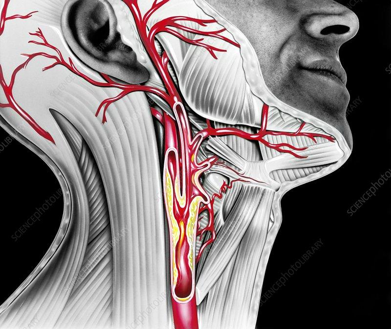 Carotid atherosclerosis, artwork