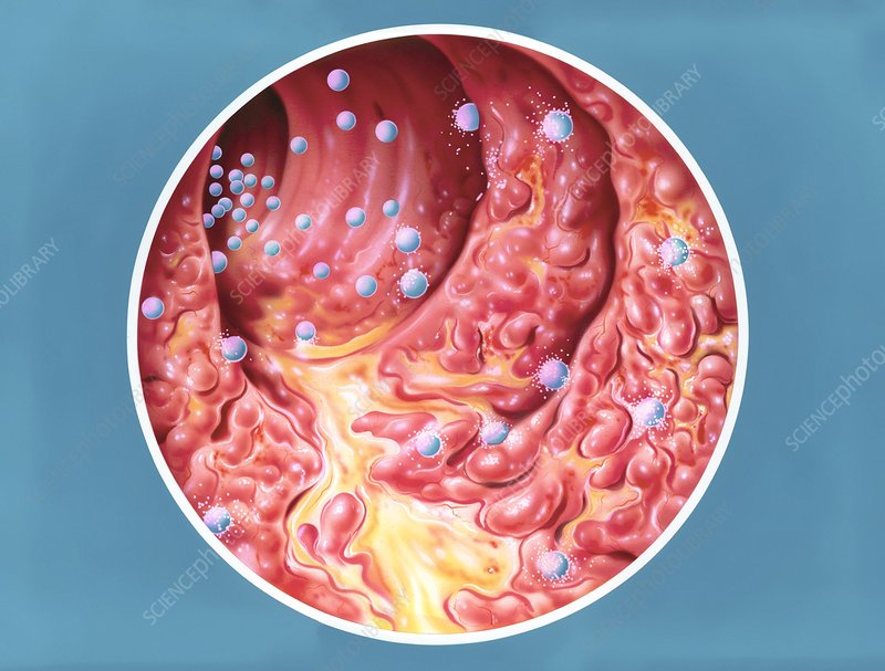 Ulcerative colitis treatment, artwork