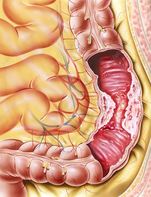 Colon cancer, artwork