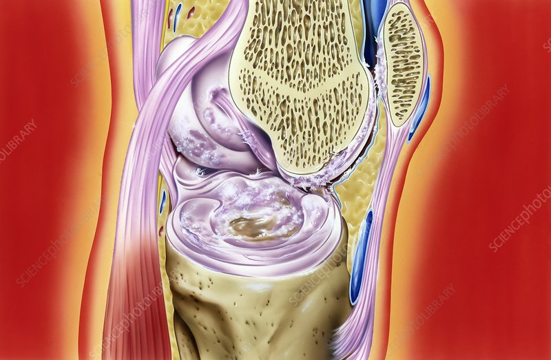 Gout in knee joint, artwork