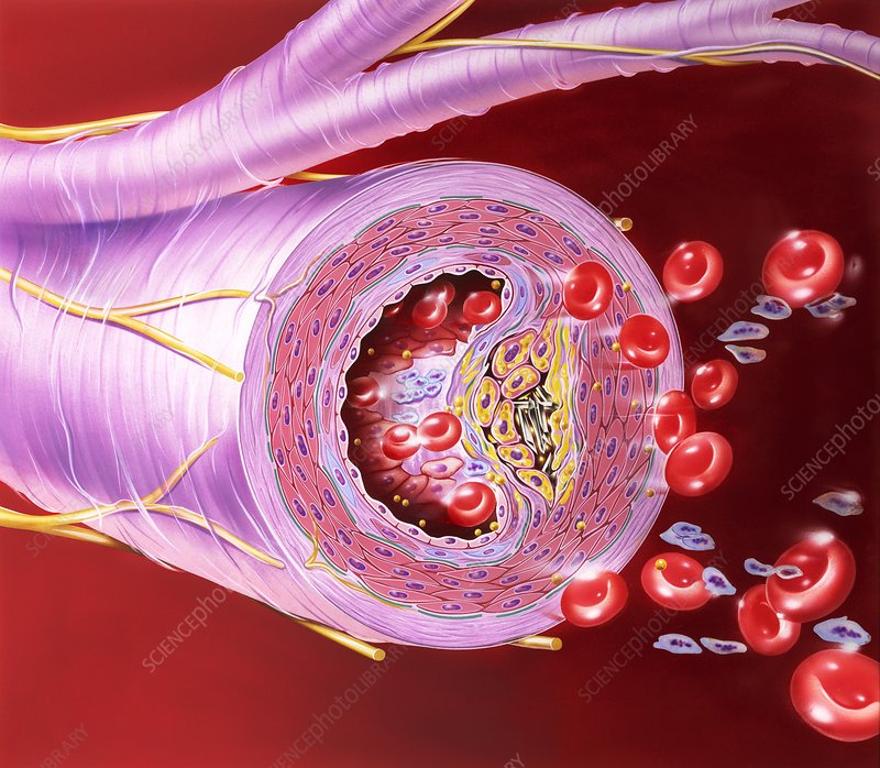 Atherosclerosis of artery, artwork