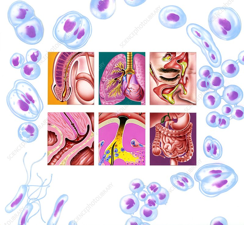 Bacterial infections, artwork