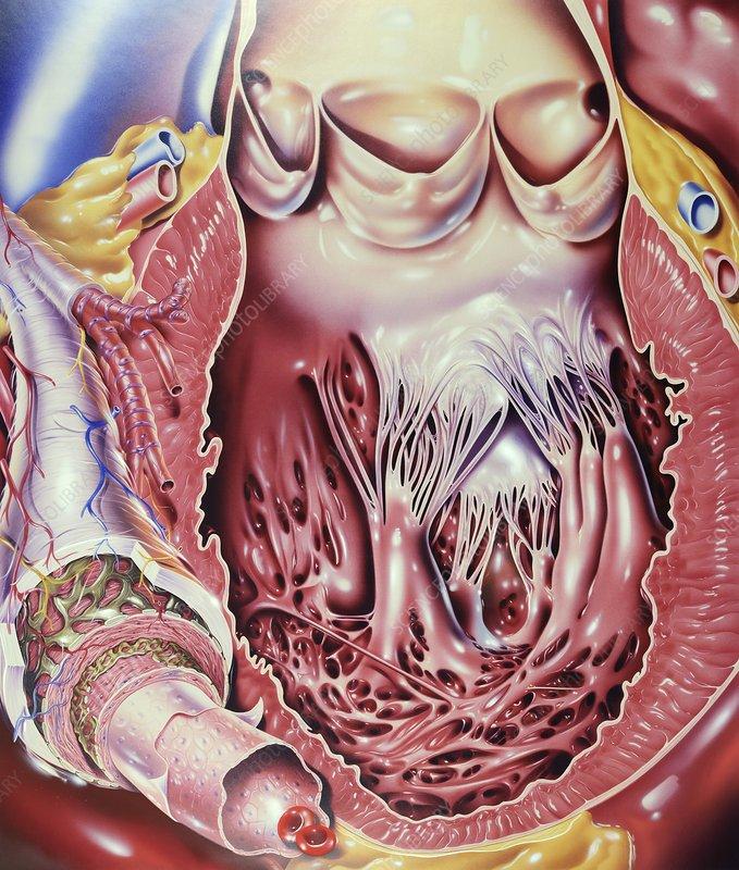 Left ventricle of heart, artwork