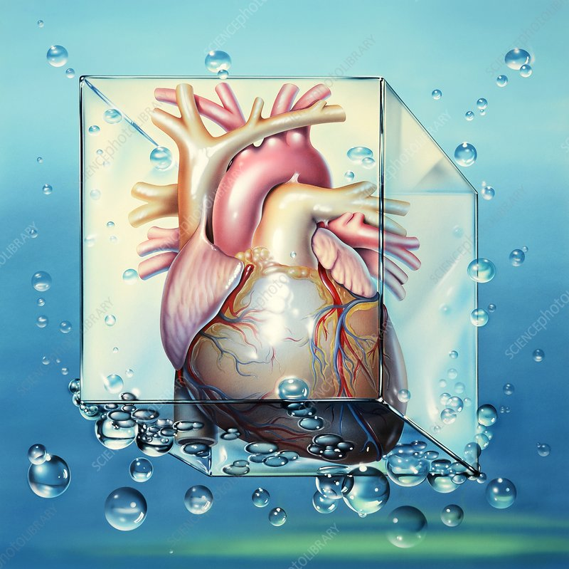 Cardiogenic shock, artwork
