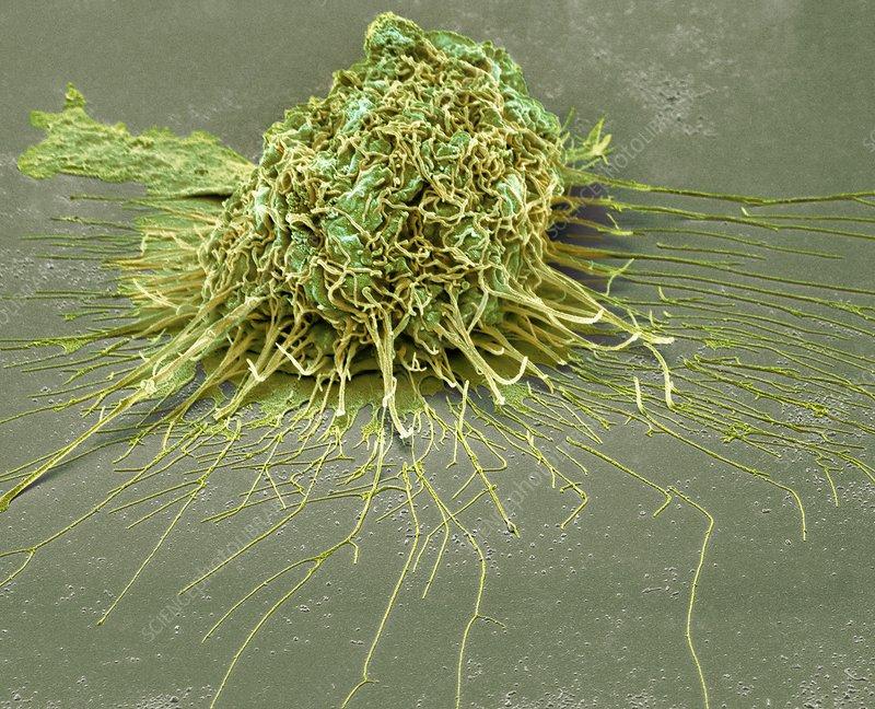 Bronchial epithelium, SEM