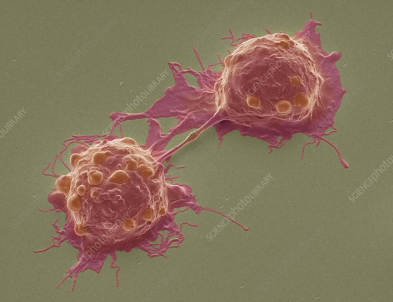 Dividing colorectal cancer cells, SEM