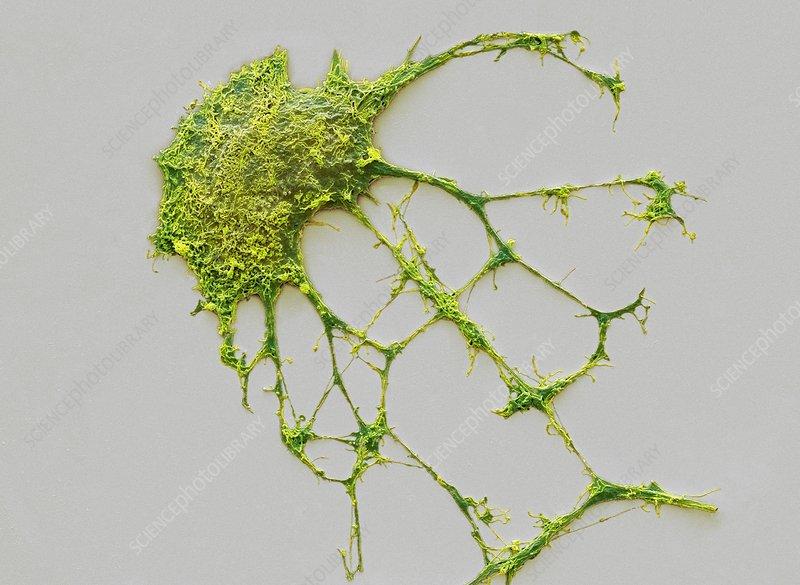 Neurone, SEM