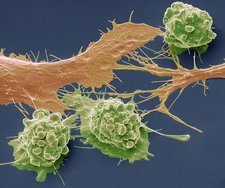 Colorectal cancer cells, SEM