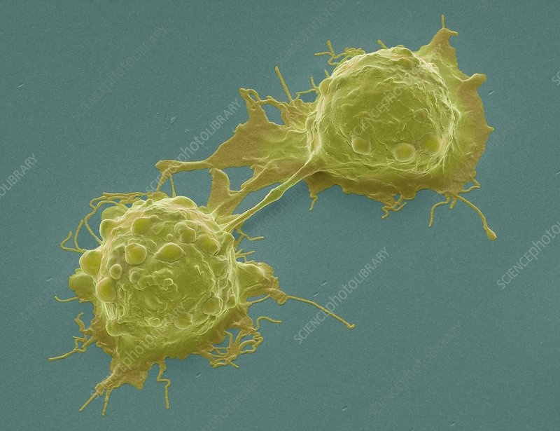 Dividing colorectal cancer cells, SEM
