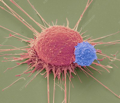 T lymphocyte and cancer cell, SEM