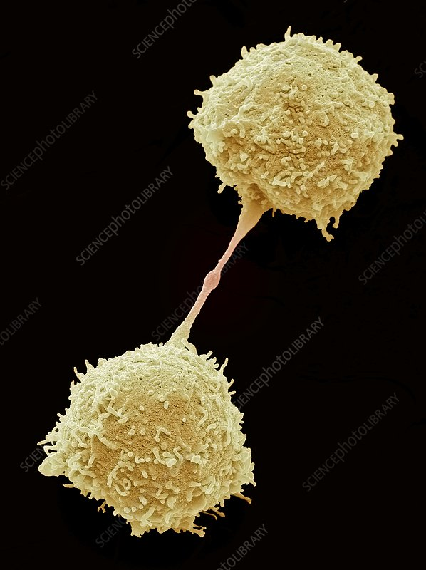 Dividing lymphocytes, SEM