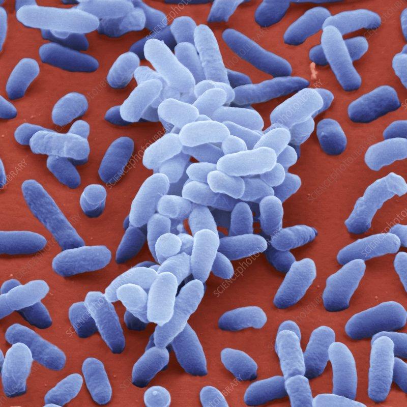 Enterobacter cloacae bacteria, SEM