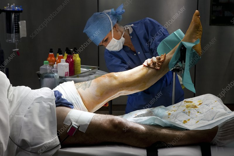 Preparation for knee surgery