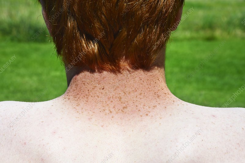 Freckles and red hair, sunburn