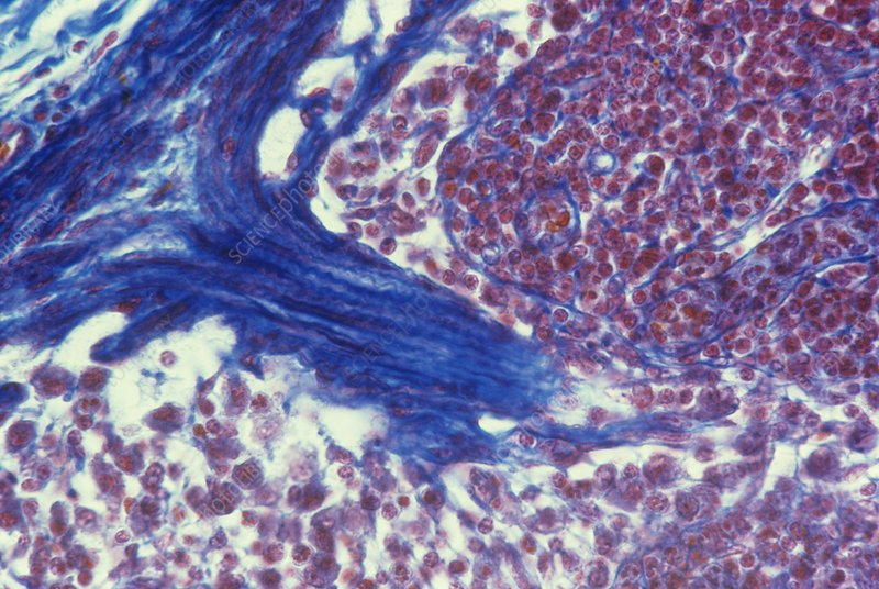 Lymph node, light micrograph