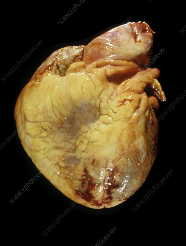 Human heart after heart attack
