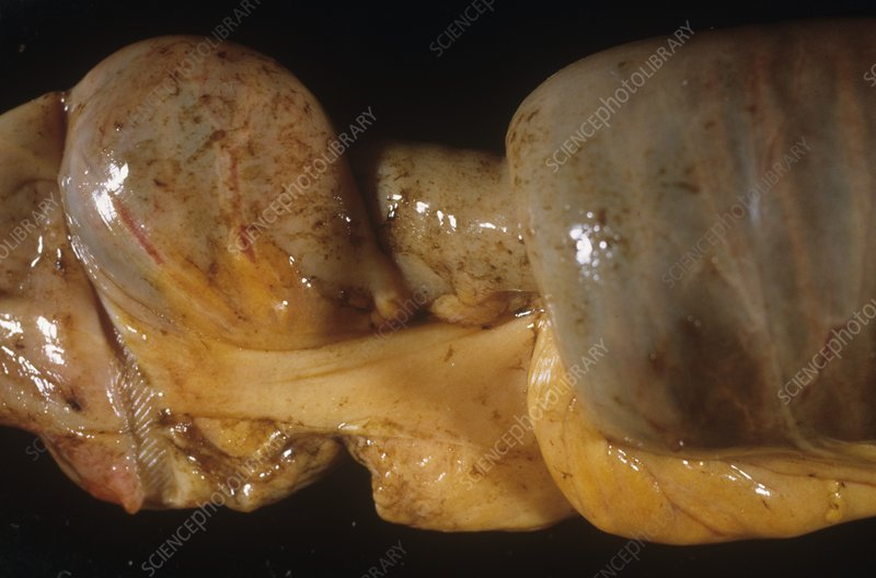 Intussusception of the intestines