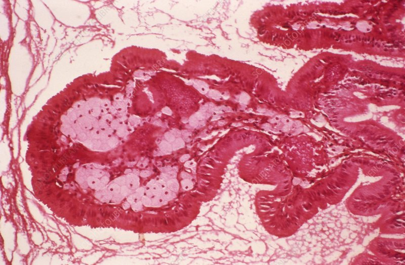 Gallbladder cholesterolosis, micrograph