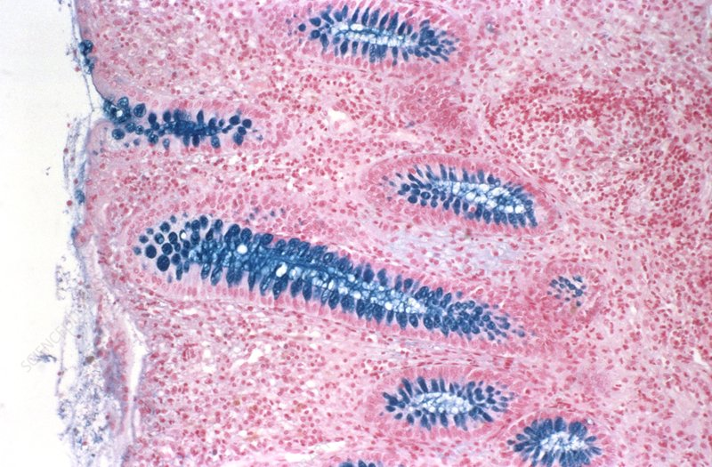 Inflamed colon, light micrograph