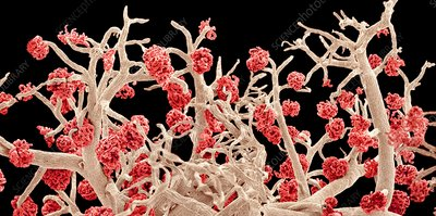 Kidney blood vessels, SEM