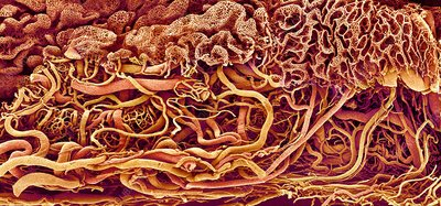 Intestinal blood vessels, SEM