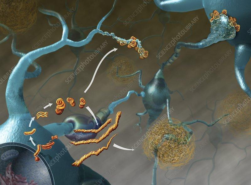 Prions in brain disease, illustration