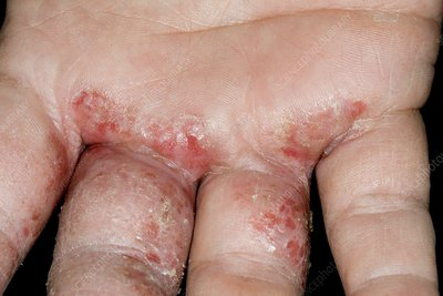 Infected eczema of the hand