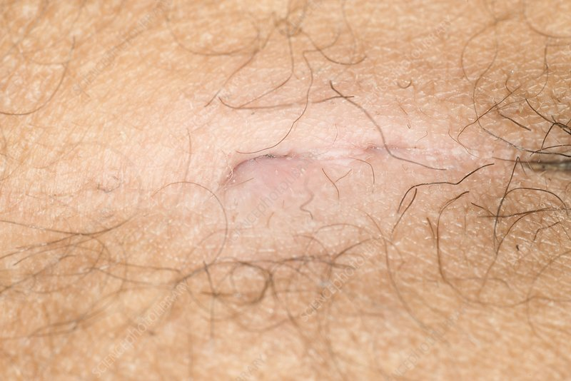 Pilonidal sinus - Stock Image - C023/0713 - Science Photo