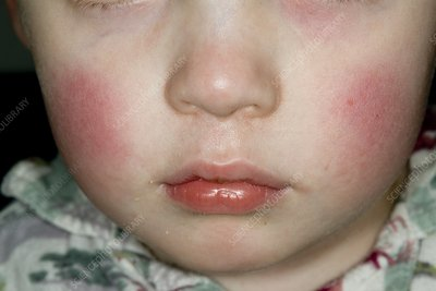 Face in fifth disease
