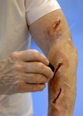 Simulated arm lacerations
