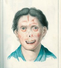 Facial lesions, illustration