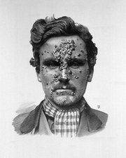 Secondary syphilis, 19th century