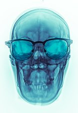 Skull with glasses, X-ray