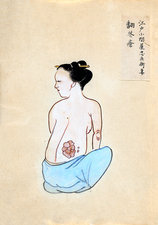 Tumour on back, 19th-century Japan