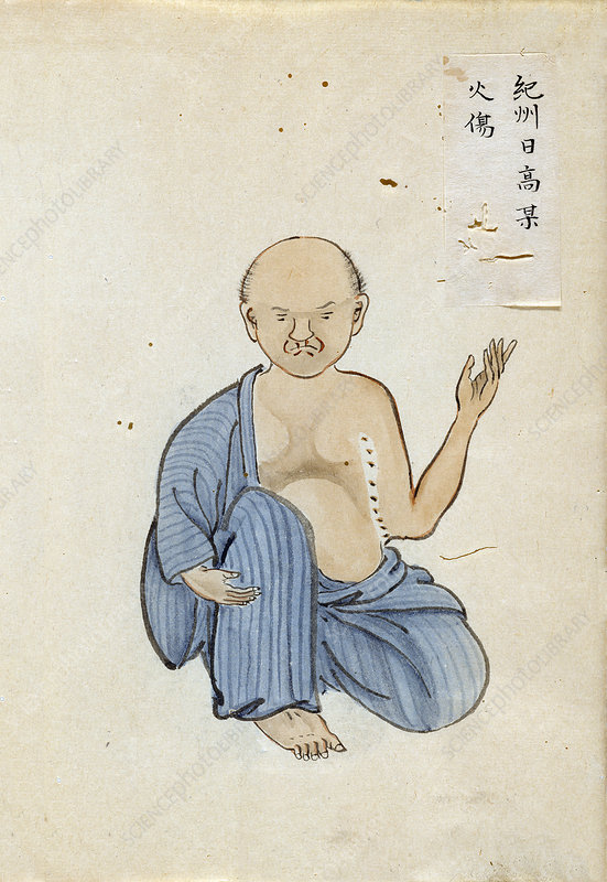 Burn scar contracture, 19th-century Japan