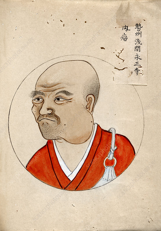 Cancer patient, 19th-century Japan