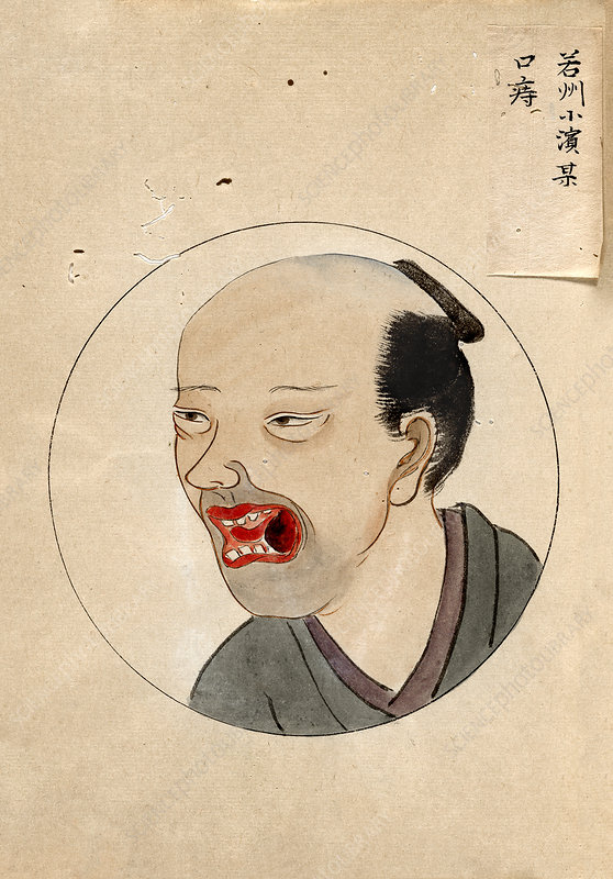 Oral cancer patient, 19th-century Japan