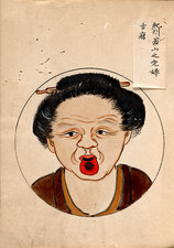 Tongue cancer patient, 19th-century Japan