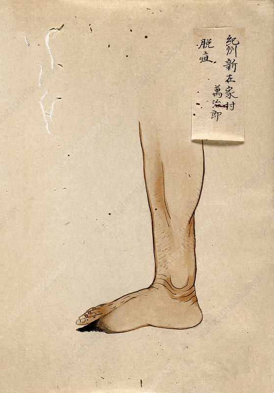 Gangrenous toe, 19th-century Japan