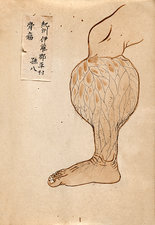 Swollen lower leg, 19th-century Japan
