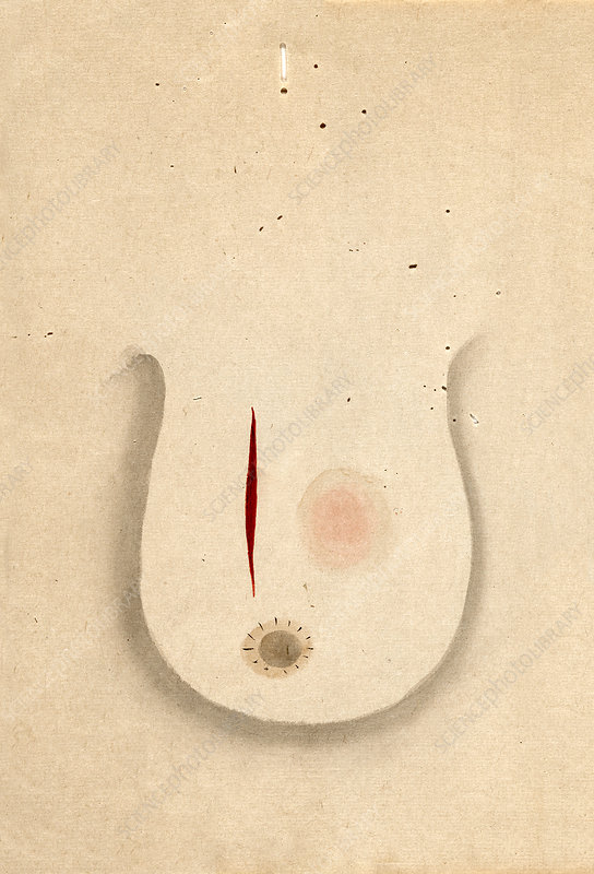 Breast cancer surgery, 19th-century Japan