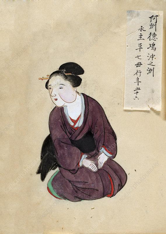 Tumour patient, 19th-century Japan