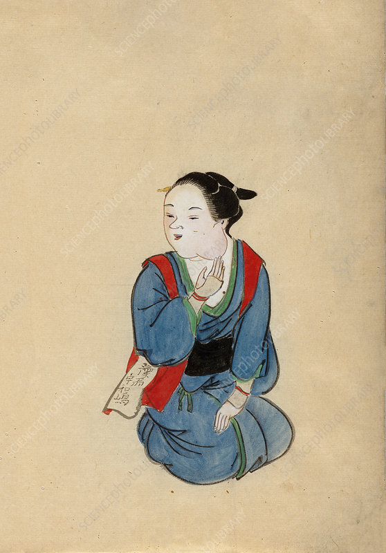 Cancer patient, 19th-century Japan