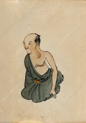 Chest cancer patient, 19th-century Japan