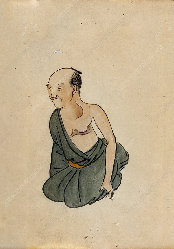 Chest cancer patient, 19th-century Japan