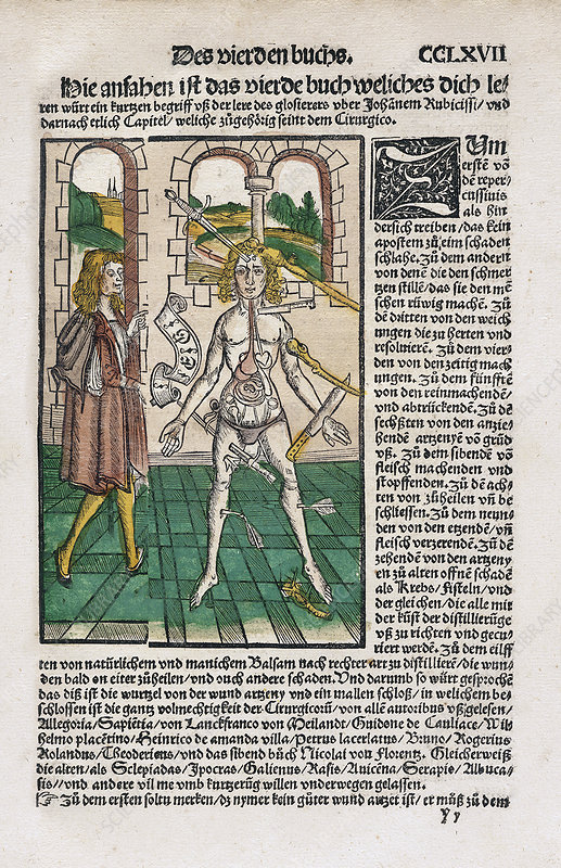 Wound Man and alchemy, 16th century