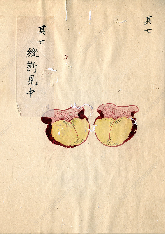Excised breast cancer, 19th-century Japan